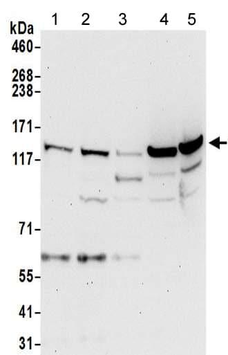 Western blot - Anti-valyl tRNA synthetase antibody - C-terminal (ab205955)