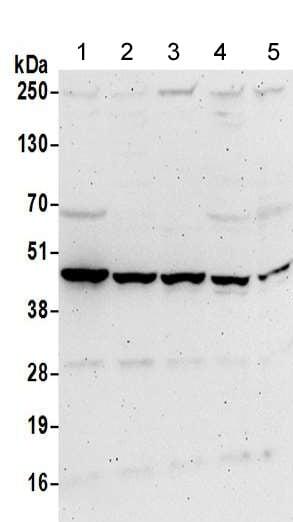 Western blot - Anti-PME-1 antibody (ab205956)