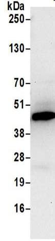 Immunoprecipitation - Anti-PME-1 antibody (ab205956)