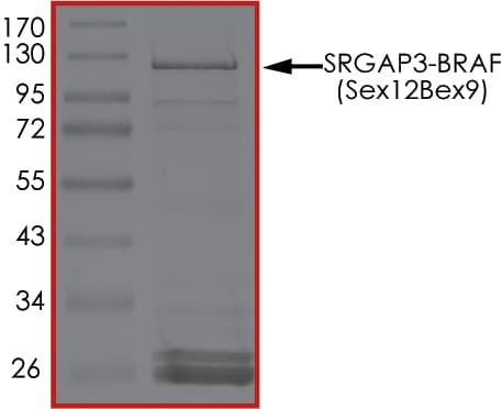 SDS-PAGE - Recombinant human SRGAP3 + BRAF protein (ab205991)