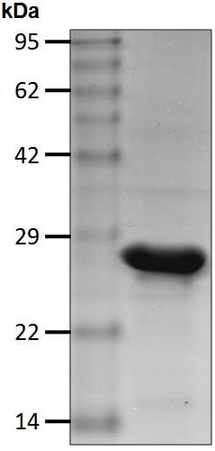 SDS-PAGE - Recombinant Human HSPC150/UBE2T protein (ab206015)