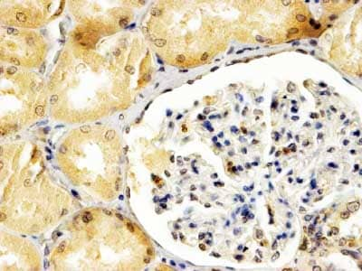 Immunohistochemistry (Formalin/PFA-fixed paraffin-embedded sections) - Anti-APOBEC3G/A3G antibody (ab206108)