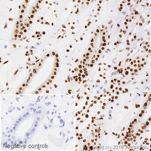 Immunohistochemistry (Formalin/PFA-fixed paraffin-embedded sections) - Anti-ILF3/NF90 antibody [EPR3626] (HRP) (ab206250)
