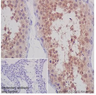Immunohistochemistry (Formalin/PFA-fixed paraffin-embedded sections) - Anti-STK33 antibody [EPR15343] (ab206296)