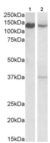 Western blot - Anti-ARS2 antibody - C-terminal (ab206316)