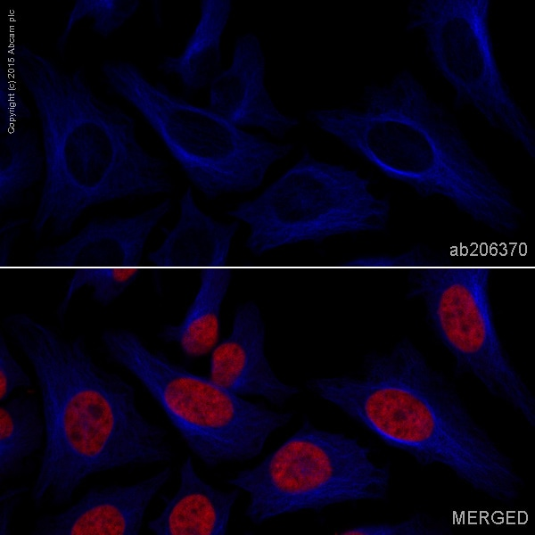 Immunocytochemistry/ Immunofluorescence - Anti-beta Tubulin antibody [EPR16774] (Alexa Fluor® 405) (ab206370)