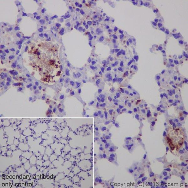 Immunohistochemistry (Formalin/PFA-fixed paraffin-embedded sections) - Anti-CXCL7/PBP antibody [EPR20036] (ab206406)