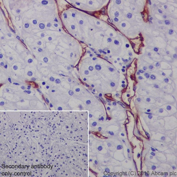 Immunohistochemistry (Formalin/PFA-fixed paraffin-embedded sections) - Anti-CD105 antibody [EPR19911] (ab206419)