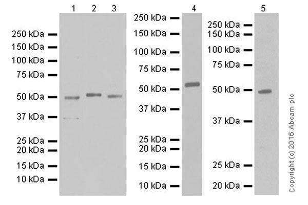 Western blot - Anti-Angiopoietin-like 4/ANGPTL4 antibody [EPR19873] (ab206420)