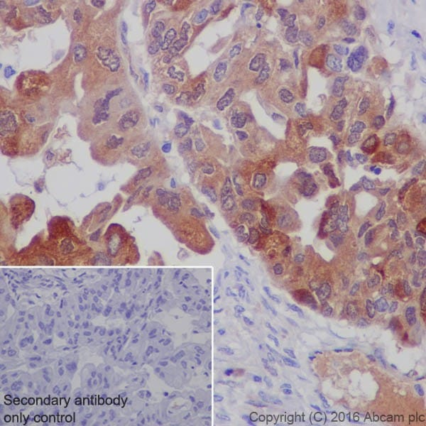 Immunohistochemistry (Formalin/PFA-fixed paraffin-embedded sections) - Anti-Lipocalin-2 / NGAL antibody [EPR19912] (ab206427)