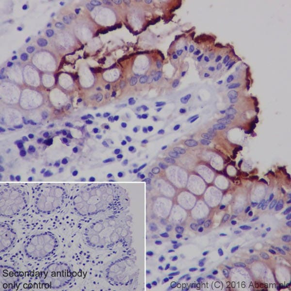 Immunohistochemistry (Formalin/PFA-fixed paraffin-embedded sections) - Anti-CEACAM1 + CEACAM6 antibody [EPR19878] (ab206431)