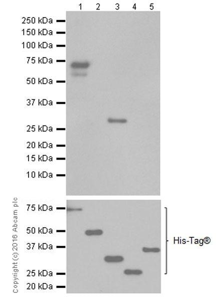 Western blot - Anti-CEACAM1 + CEACAM6 antibody [EPR19878] (ab206431)