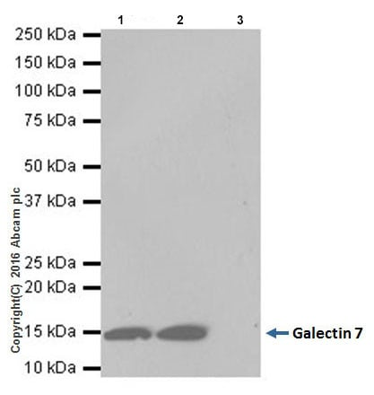 Immunoprecipitation - Anti-Galectin 7 antibody [EPR19903] (ab206435)