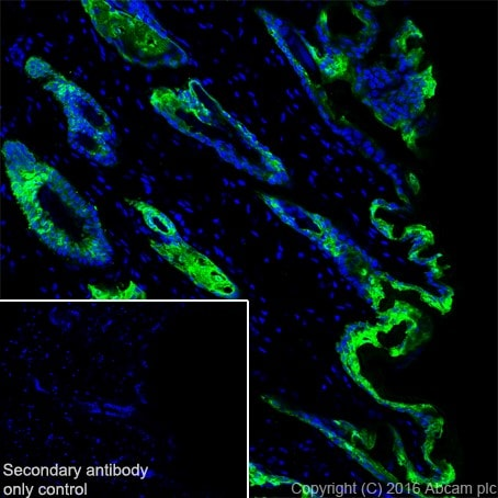 Immunohistochemistry (Frozen sections) - Anti-Galectin 7 antibody [EPR19903] (ab206435)
