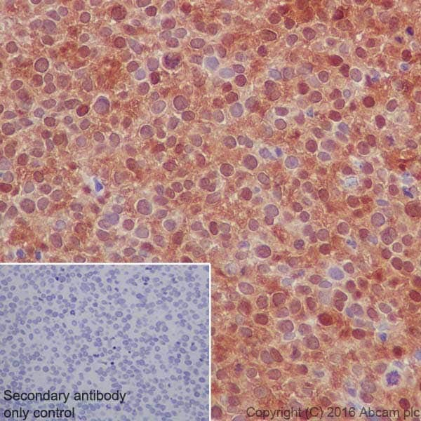 Immunohistochemistry (Formalin/PFA-fixed paraffin-embedded sections) - Anti-Galectin 7 antibody [EPR19903] (ab206435)