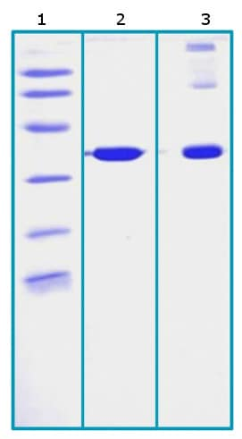 SDS-PAGE - Recombinant Human Cyclophilin E protein (His tag) (ab206449)