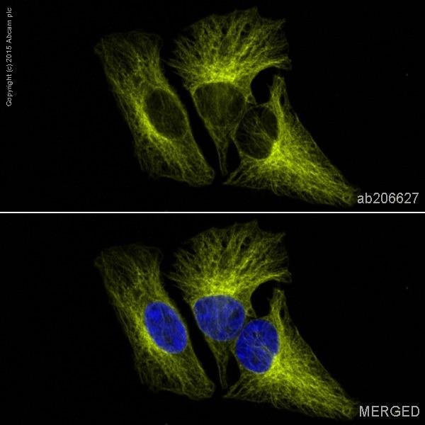 Immunocytochemistry/ Immunofluorescence - Anti-beta Tubulin antibody [EPR16774] (Alexa Fluor® 555) (ab206627)
