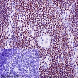 Immunohistochemistry (Formalin/PFA-fixed paraffin-embedded sections) - Anti-Ikaros antibody [EPR13790] - BSA and Azide free (ab206645)