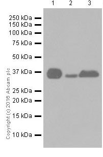 Western blot - Anti-Casein Kinase 1 alpha antibody [EPR19824] (ab206652)