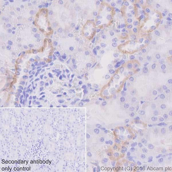 Immunohistochemistry (Formalin/PFA-fixed paraffin-embedded sections) - Anti-CYP27B1 antibody [EPR20271] (ab206655)