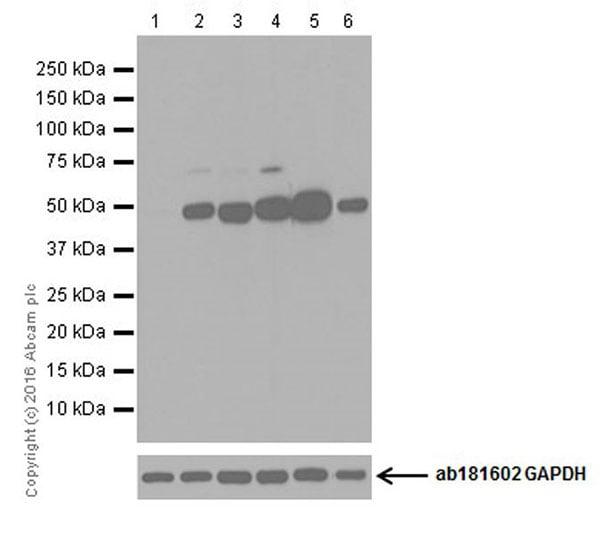 Western blot - Anti-CYP27B1 antibody [EPR20271] (ab206655)
