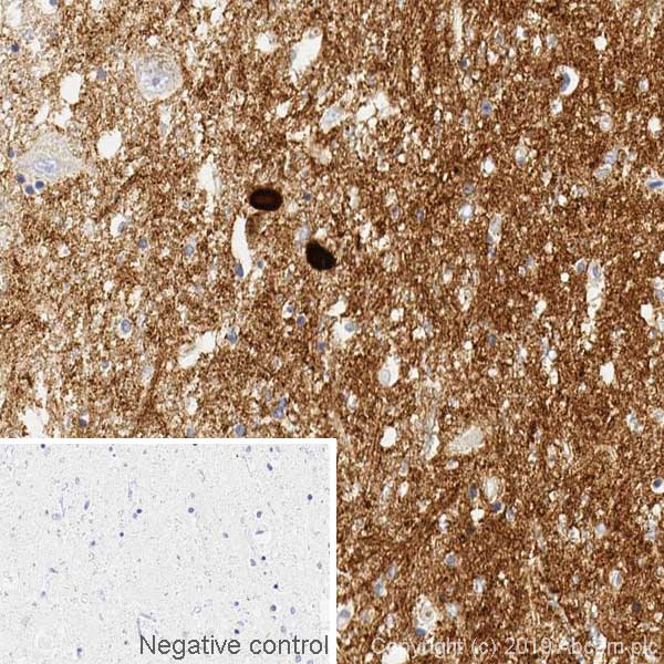 Immunohistochemistry (Formalin/PFA-fixed paraffin-embedded sections) - Anti-Alpha-synuclein antibody [syn211] - BSA and Azide free (ab206675)