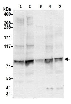 Western blot - Anti-P5CS antibody (ab206682)