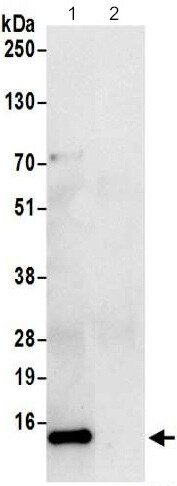 Immunoprecipitation - Anti-TCTEX-1 antibody - Membrane Vesicle Marker (ab206683)
