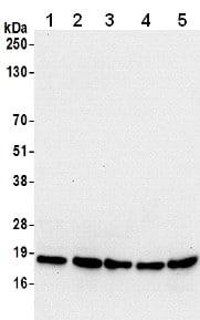 Western blot - Anti-PFDN2 antibody - C-terminal (ab206691)