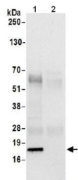 Immunoprecipitation - Anti-PFDN2 antibody - C-terminal (ab206691)