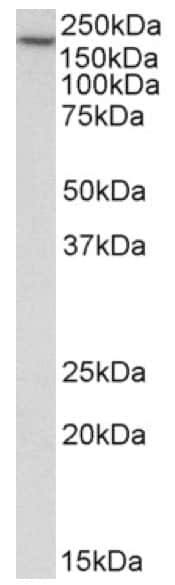 Western blot - Anti-EEA1 antibody (ab206860)