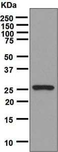 Western blot - Anti-Oncostatin M/OSM antibody [EPR7150] - BSA and Azide free (ab206992)