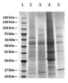 SDS-PAGE of Plant tissue lysates.
