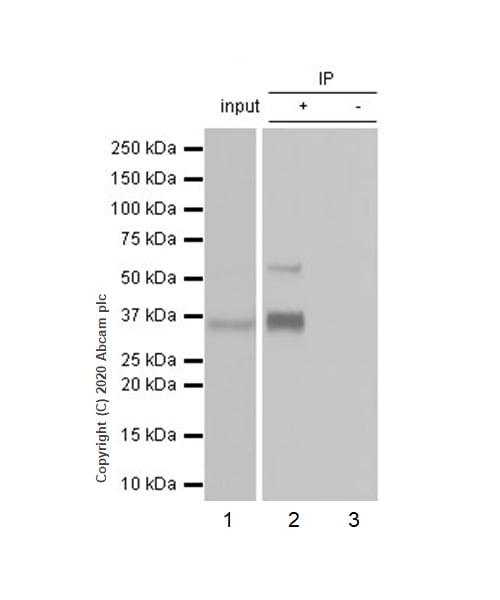 Immunoprecipitation - Anti-Glypican 3 antibody [EPR20569] (ab207080)