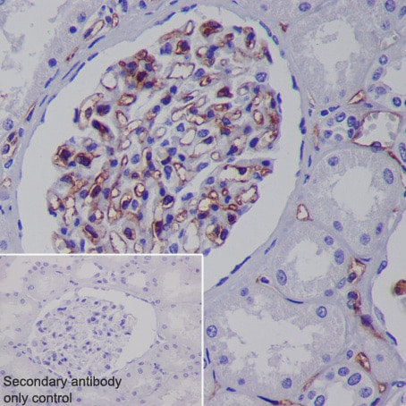 Immunohistochemistry (Formalin/PFA-fixed paraffin-embedded sections) - Anti-CD31 antibody [EPR3094] - BSA and Azide free (ab207090)