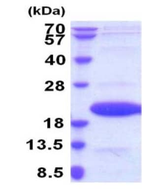 SDS-PAGE - Recombinant Mouse IL36 alpha/IL-1F6 protein (ab207104)