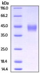 SDS-PAGE - Recombinant Rhesus monkey TFPI protein (ab207105)