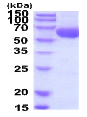 SDS-PAGE - Recombinant Human ACSF2 protein (ab207118)
