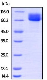 SDS-PAGE - Recombinant Human c-Kit protein (ab207135)