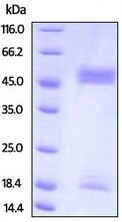 SDS-PAGE - Recombinant Mouse B2M + FCGRT protein (ab207141)
