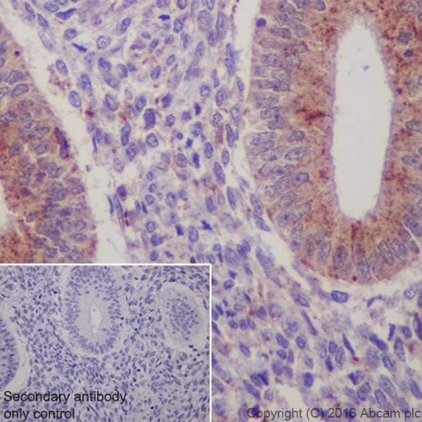 Immunohistochemistry (Formalin/PFA-fixed paraffin-embedded sections) - Anti-Niemann Pick C2 antibody [EPR19993] (ab207158)