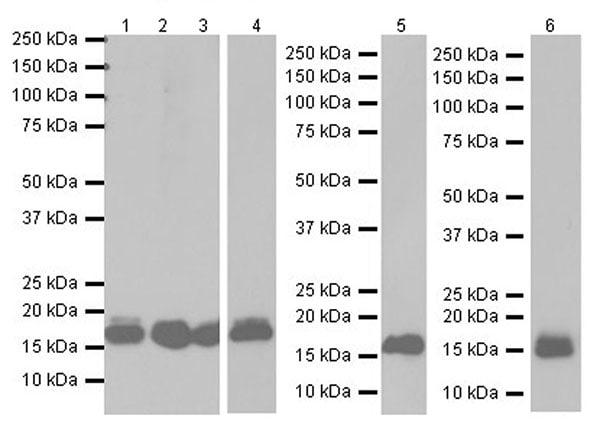 Western blot - Anti-Niemann Pick C2 antibody [EPR19993] (ab207158)