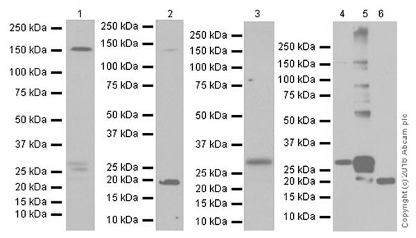 Western blot - Anti-Endostatin/COL18A1 antibody [EPR19995] (ab207162)
