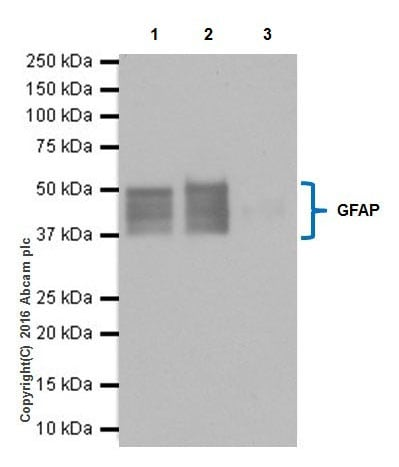Immunoprecipitation - Anti-GFAP antibody [EPR19996] (ab207165)