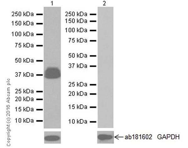Western blot - Anti-GFAP antibody [EPR19996] (ab207165)