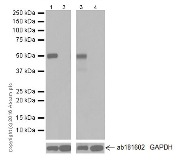 Western blot - Anti-AMCase antibody [EPR19985] (ab207168)
