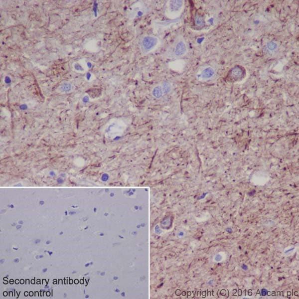 Immunohistochemistry (Formalin/PFA-fixed paraffin-embedded sections) - Anti-Neurofilament heavy polypeptide antibody [EPR20020] (ab207176)