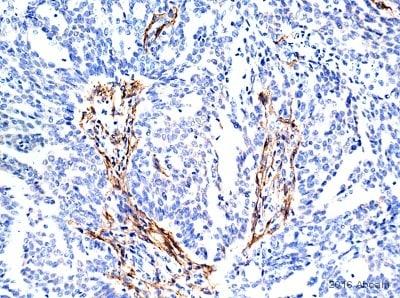 Immunohistochemistry (Formalin/PFA-fixed paraffin-embedded sections) - Anti-Fibroblast activation protein, alpha antibody [EPR20021] (ab207178)