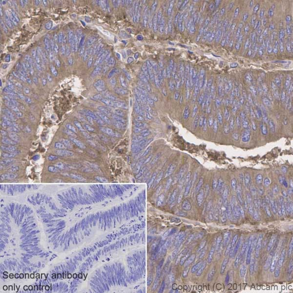 Immunohistochemistry (Formalin/PFA-fixed paraffin-embedded sections) - Anti-NF-kB p65 antibody [E379] - BSA and Azide free (ab207297)