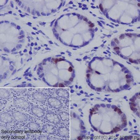 Immunohistochemistry (Formalin/PFA-fixed paraffin-embedded sections) - Anti-FOXM1 antibody [EPR17379] (ab207298)